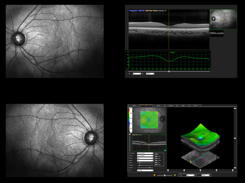 Optic Nerve Scanning